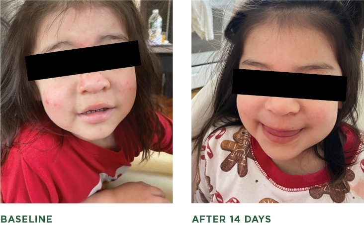 Eczema Before and After