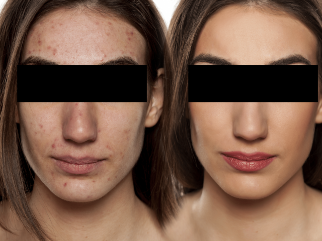 Acne: Before & After