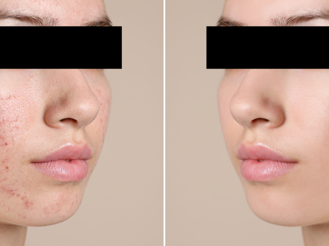Acne Patient: Before & After