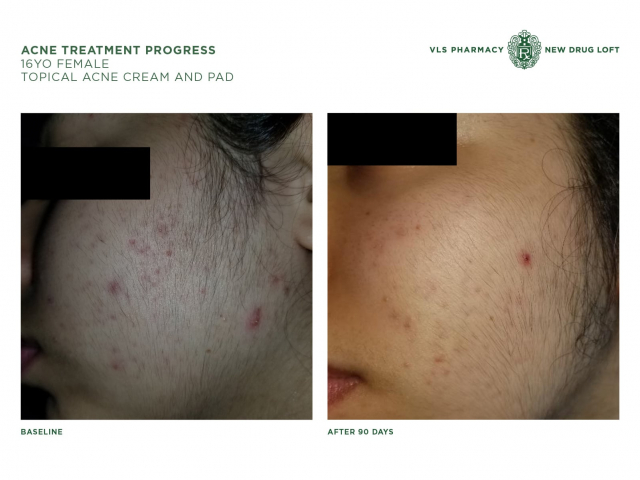 Acne Treatment Process: Before & After